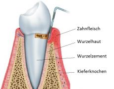 Zahnbelag verursacht Zahnfleischbluten